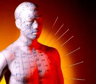 acupunctura 90